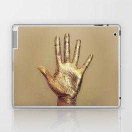 Midas Laptop & iPad Skin
