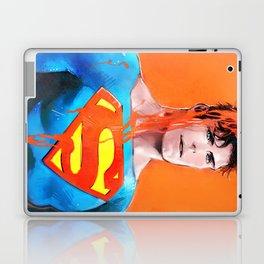 Color serial 06 Laptop & iPad Skin