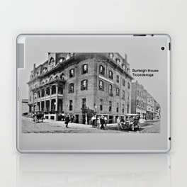 Burleigh House, Ticonderoga 1913 Laptop & iPad Skin