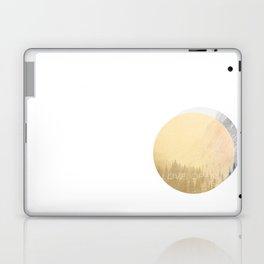 love openly Laptop & iPad Skin
