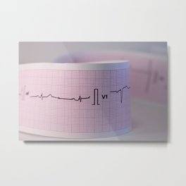 Approach and defocus an electrocardiogram strip. Record of the electrical activity of the heart. Metal Print