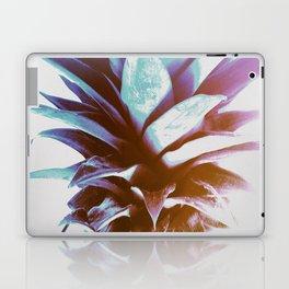 Tropical Top Laptop & iPad Skin