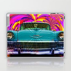 Those Were The Days Laptop & iPad Skin