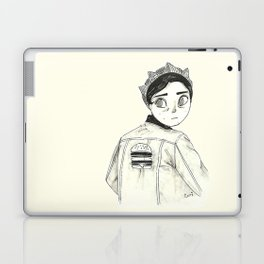 Riverdale's Jughead - Burguer King - Cole Sprouse inspired Laptop & iPad Skin