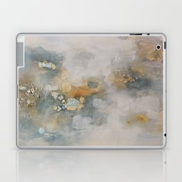 Sweet Dreams Jenny Laptop & iPad Skin