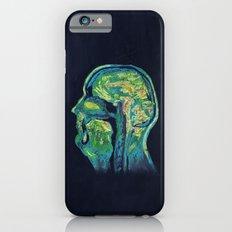 MRI iPhone 6s Slim Case