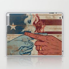 Blame US Laptop & iPad Skin