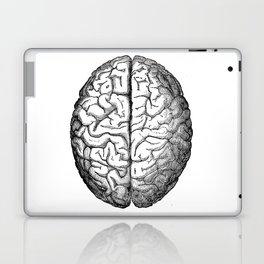 Brain Laptop & iPad Skin