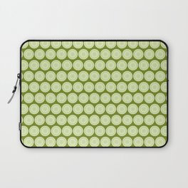 Green seed pods 1 Laptop Sleeve