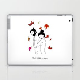 You will forget, and I will remember Laptop & iPad Skin