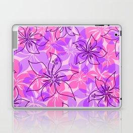 Olowalu Hibiscus Hawaiian Camo Aloha Shirt Print   Laptop & iPad Skin