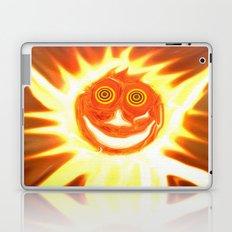 MeYoCa Laptop & iPad Skin