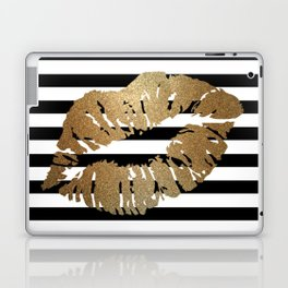 Gold Lips 2 Laptop & iPad Skin