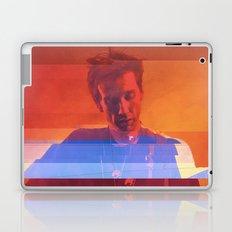 Bradford Cox   Project L0̷SS   Laptop & iPad Skin
