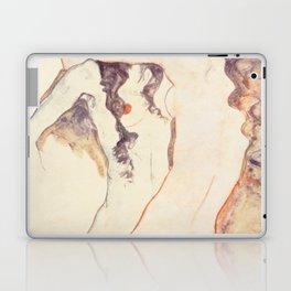 Egon Schiele Two Women Embracing Laptop & iPad Skin