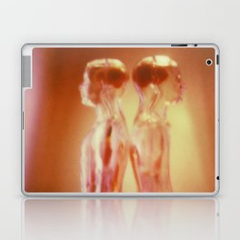 Doubles Laptop & iPad Skin