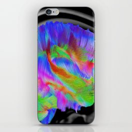 Brains in Color iPhone Skin