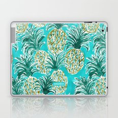 AQUA PINEAPPLE O'CLOCK Tropical Hawaiian Watercolor Laptop & iPad Skin