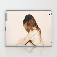 Cloudberry Laptop & iPad Skin