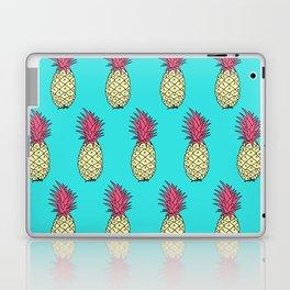 Pineapple Jive - Teal Wineberry Laptop & iPad Skin