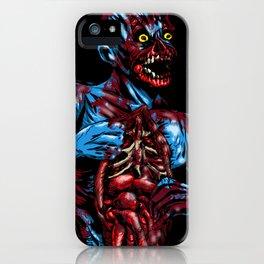 CADAVER iPhone Case