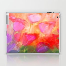 Bright Day Laptop & iPad Skin
