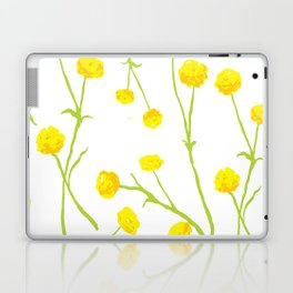 Summer Flower Pattern in Yellow and Green Laptop & iPad Skin