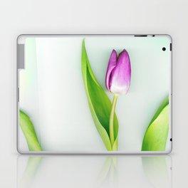 Stretch Laptop & iPad Skin