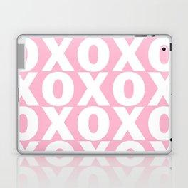 XOXO - Light Pink Pattern Laptop & iPad Skin