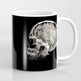January 11, 2016 (Year of radiology) Coffee Mug