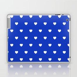 HEARTS ((white on azure)) Laptop & iPad Skin