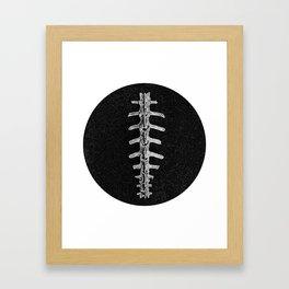 X-ray Spine. Framed Art Print