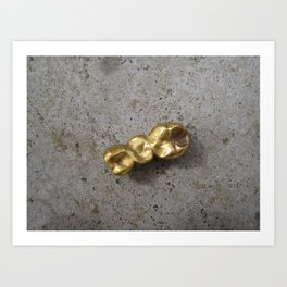 Gold Teeth Caps Art Print