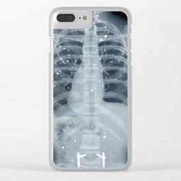 Situs Inversus Clear iPhone Case
