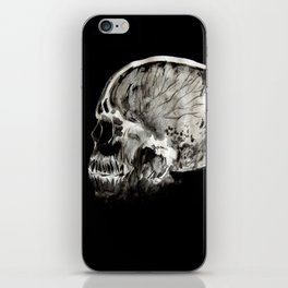 January 11, 2016 (Year of radiology) iPhone Skin