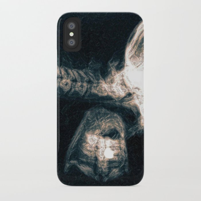 Pain in the Neck iPhone Case