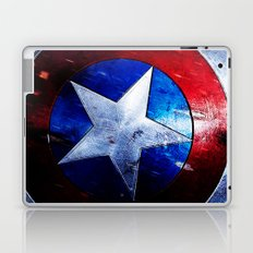 shield Laptop & iPad Skin