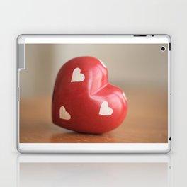 Love Is Laptop & iPad Skin