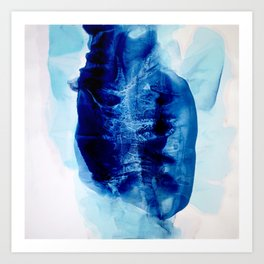 Coronary blues Art Print