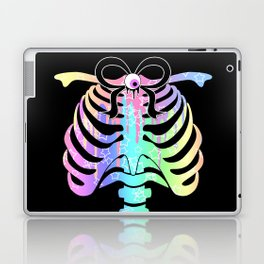 Pastel Rainbow Ribcage Alternate Laptop & iPad Skin