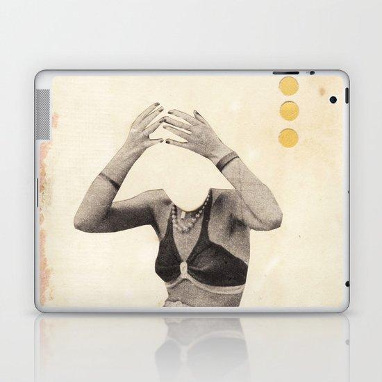 Losing my Head Laptop & iPad Skin
