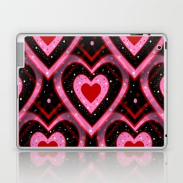 Heavenly Hearts - Valentines Day Laptop & iPad Skin