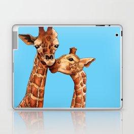 ILY Laptop & iPad Skin