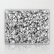 are you nervous? Laptop & iPad Skin