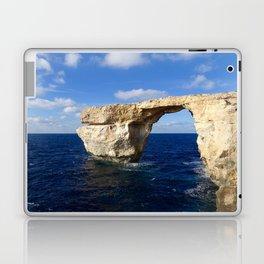 Azure Laptop & iPad Skin