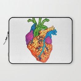 Bursting Art-eries Laptop Sleeve