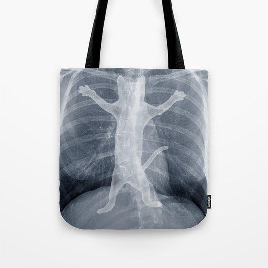 x-ray Tote Bag