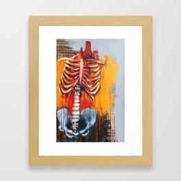 Syndrome Framed Art Print