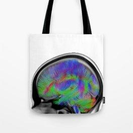 Sagittal Clear Tote Bag