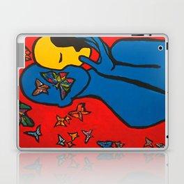 SKIN DEEP  (ORIGINAL SOLD) Laptop & iPad Skin